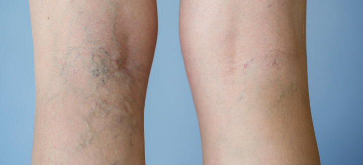 varicose veins treatment at tampa florida
