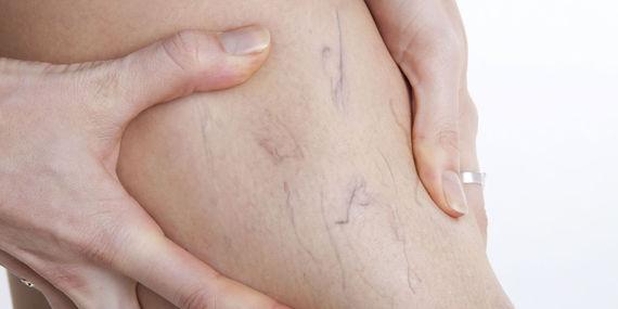 varicose veins treatment at tampa fl