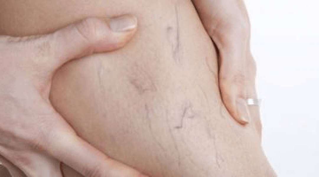 Vein Surgery & What to Expect After Treatment