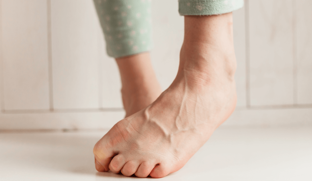 Leg Veins: The Difference Between Varicose & Spider Veins