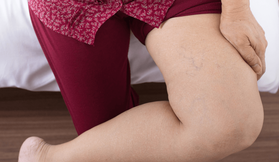 Varicose Veins Pain Relief- What Causes Varicose Veins & Are They Preventable?