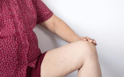 Vein Treatment: Choosing A Trusted Vein Center