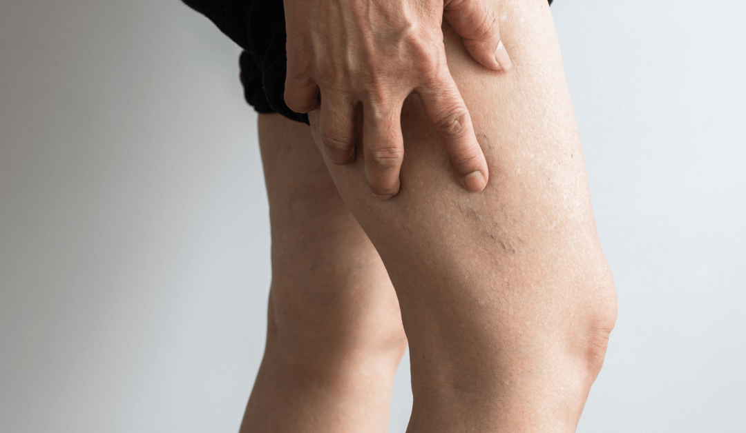 Varicose Veins Pain: 5 Signs That You Need Treatment