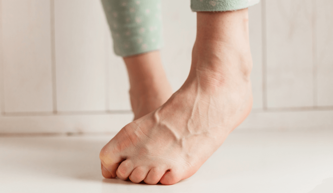 Varicose Veins Symptoms & When To Worry