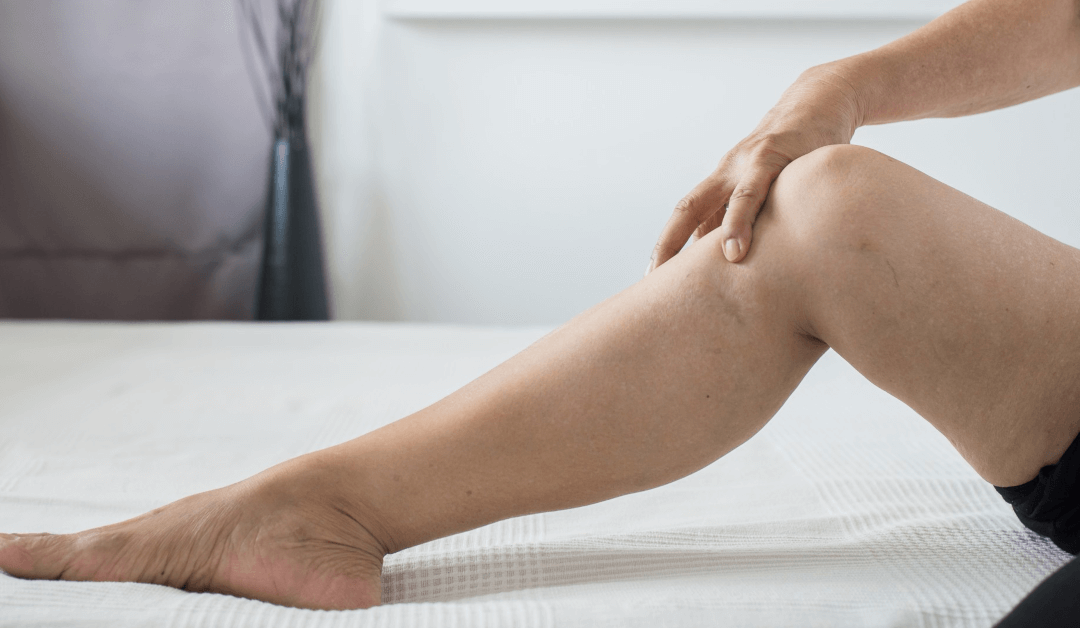 Causes of Varicose Veins & Are They Preventable?