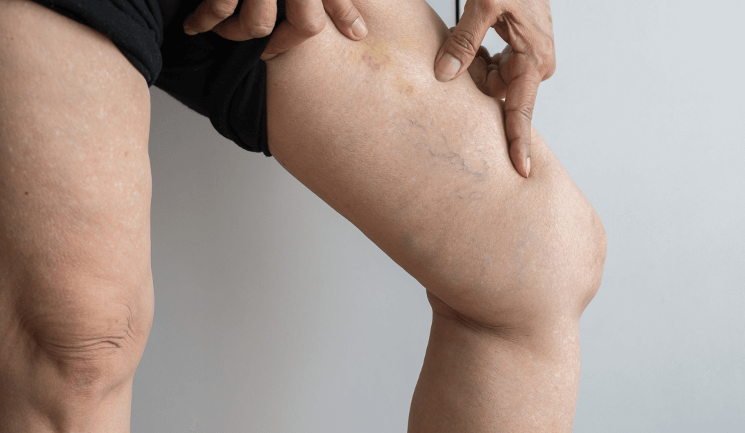 Radiofrequency Ablation Varicose Veins 101