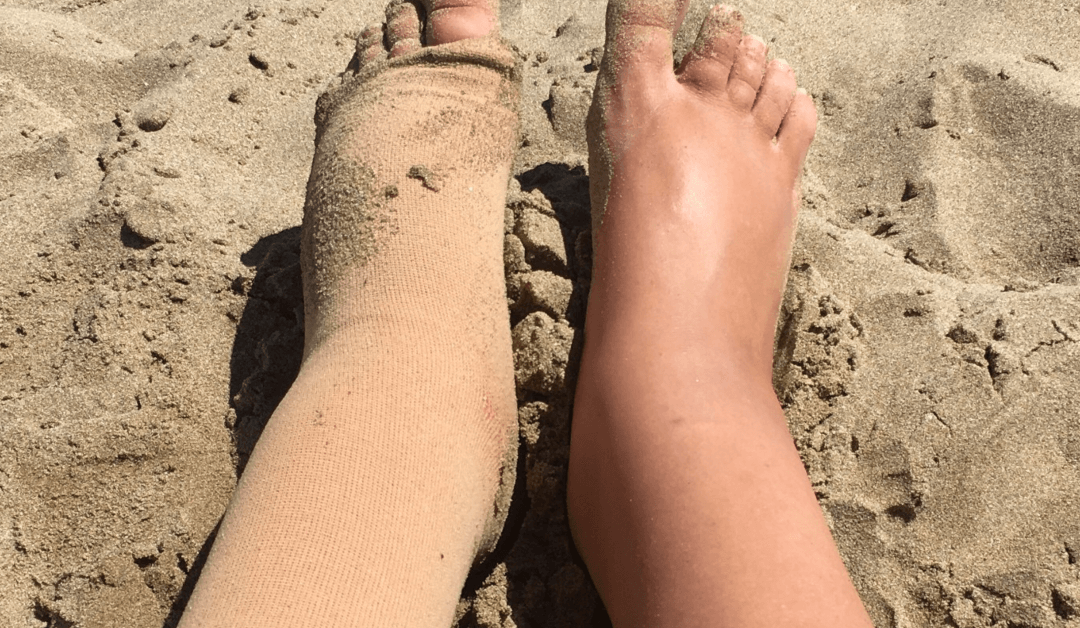 What Does Lymphedema in Legs Mean For You?