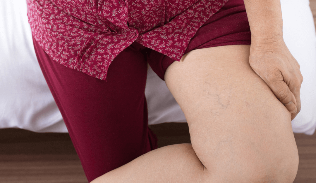 Varicose Vein Surgery Recovery Time & More