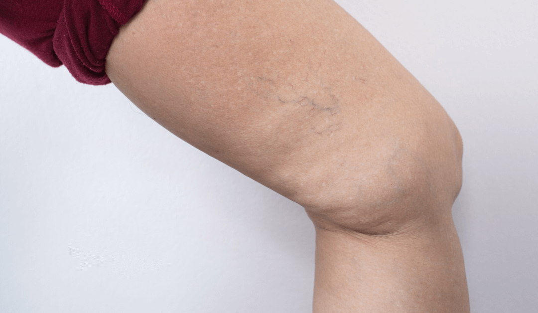 Avoid Excessive Spider Vein Removal After Pregnancy