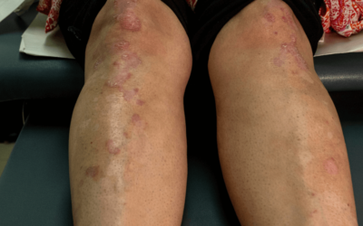 Did You Know Skin Conditions Can Be Linked To Your Varicose Veins