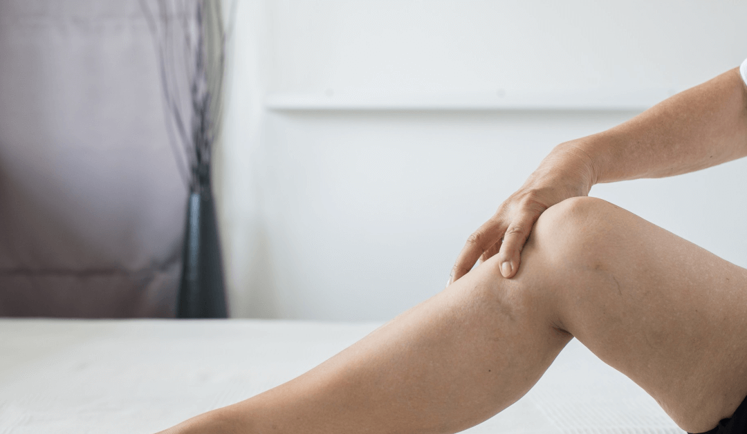 What To Expect From Sclerotherapy For Your Spider Vein Removal?