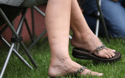 Start Managing Your Painful Varicose Veins