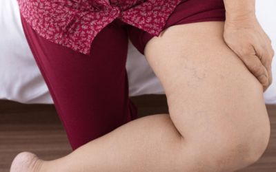 Is There a Varicose Veins Remedy I Can Try From Home?