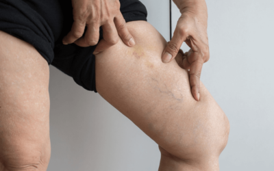Avoid Extensive Vein Treatment By Practicing Good Vein Health