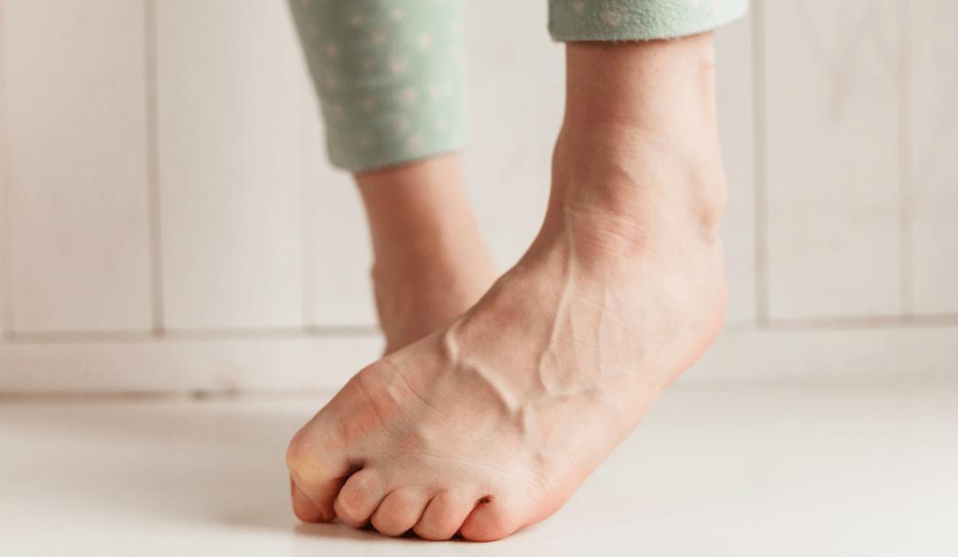 leg vein treatment in Tampa