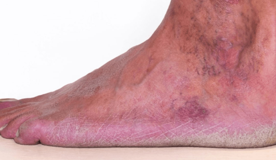 Chronic Venous Insufficiency – What Are Your Options