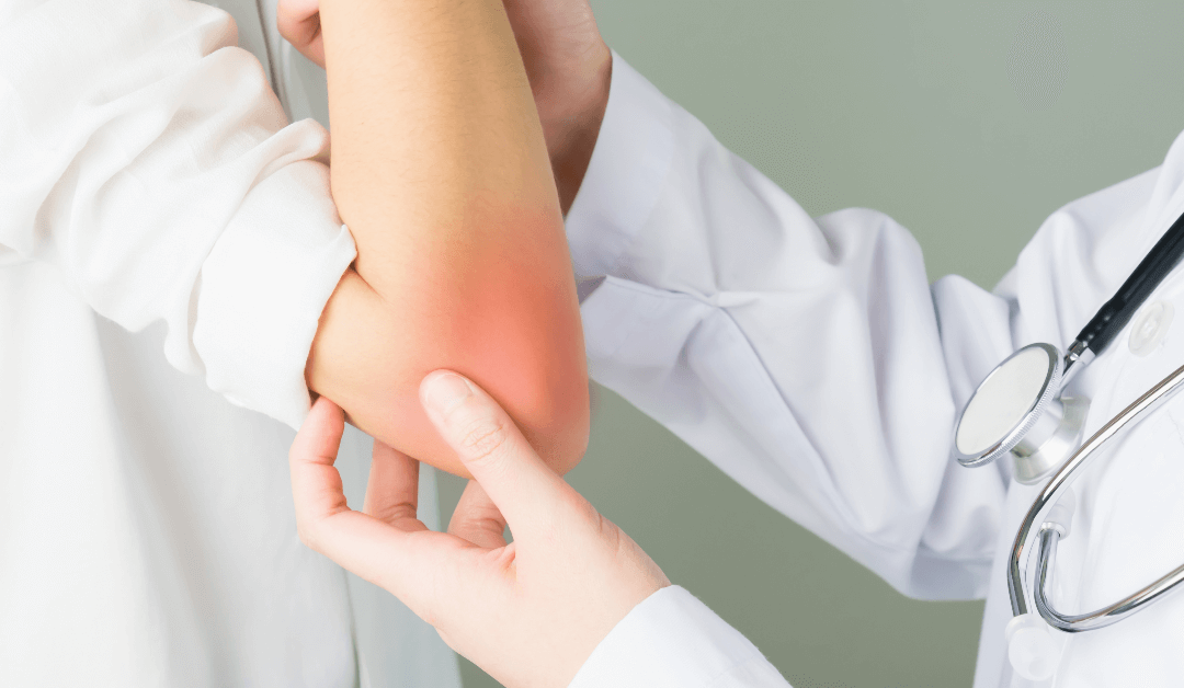 Talk To A Vein Specialist Doctor About Your Skin Rash