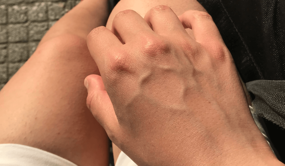 Common Signs Of A Vein Disorder