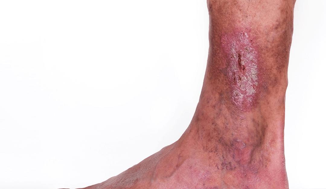 varicose vein rash in West Palm Beach