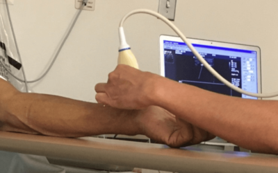 What Is A Vein Ultrasound?