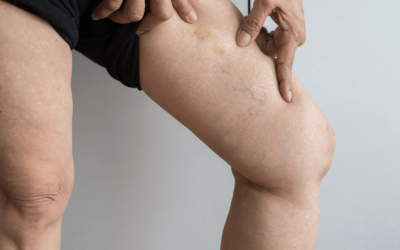 How To Treat Varicose Veins & What Time Of Year Is Best